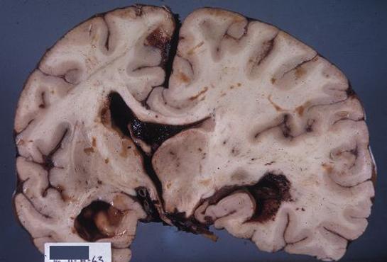 Laringoboraneit ve çeşitli hastalıkların tedavisi 34
